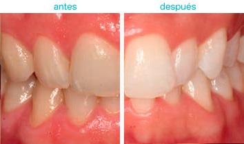 blanqueamiento dental 2
