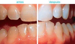blanqueamiento dental 3
