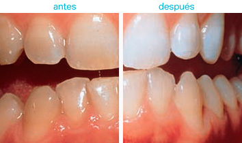 blanqueamiento dental 3